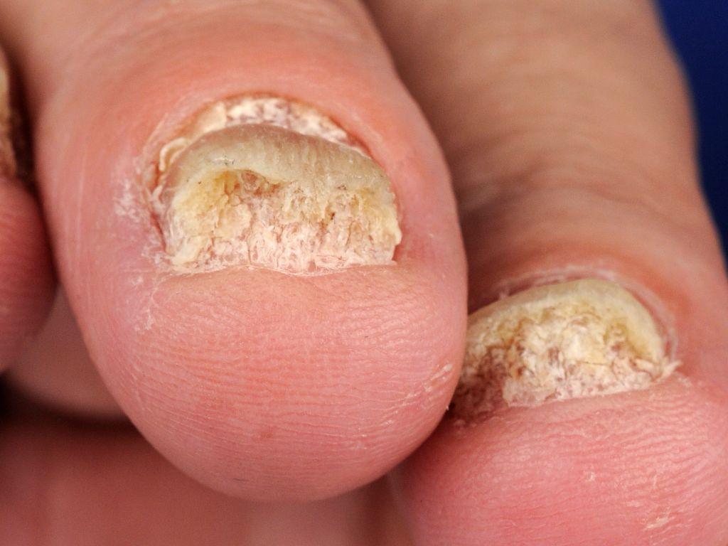 psoriasisartrit symptom naglar