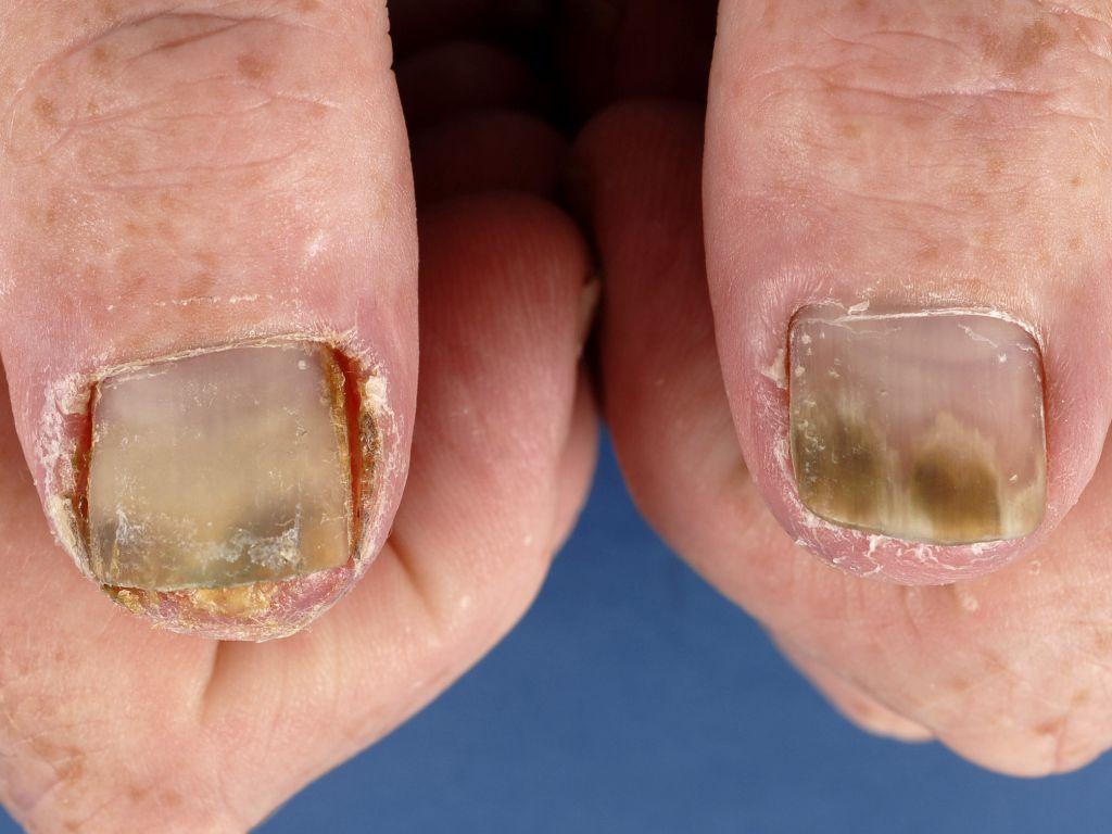 psoriasis aan de nagels