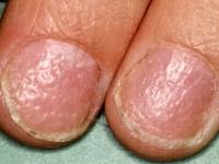 bobbels in nagels