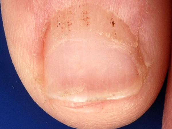 splinter hemorrhages s...