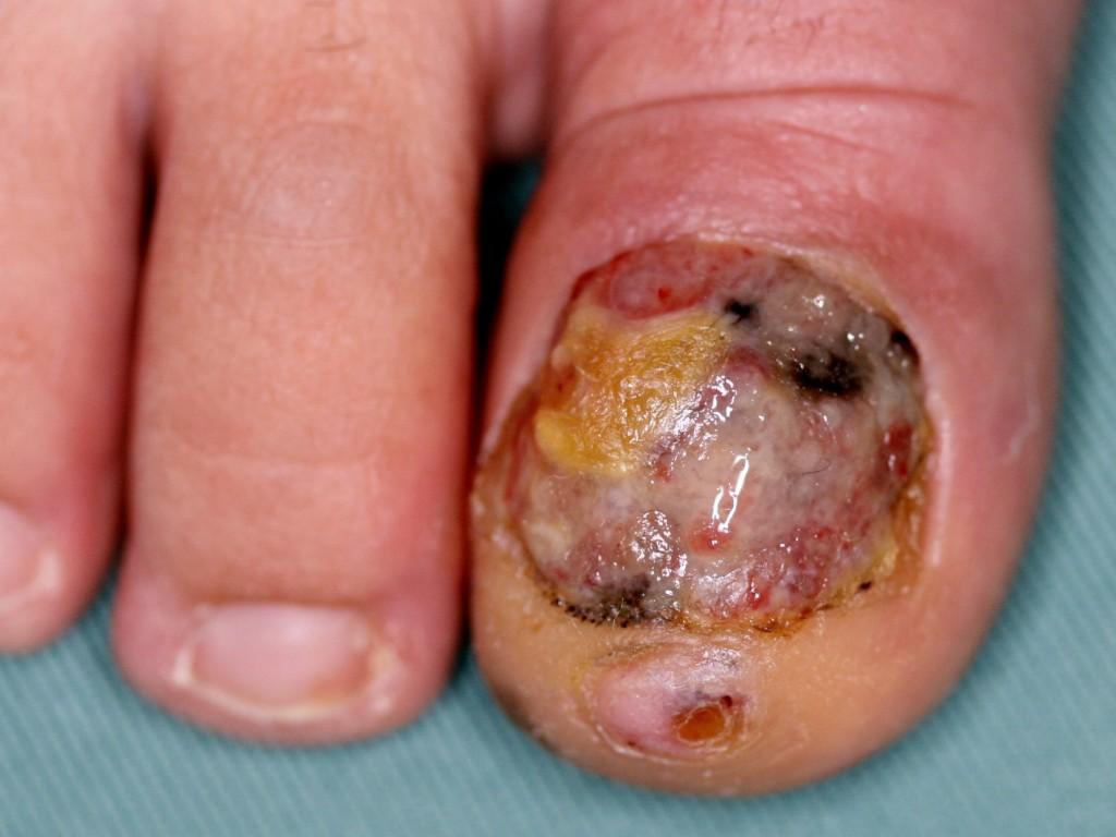 zwarte nagel schimmel
