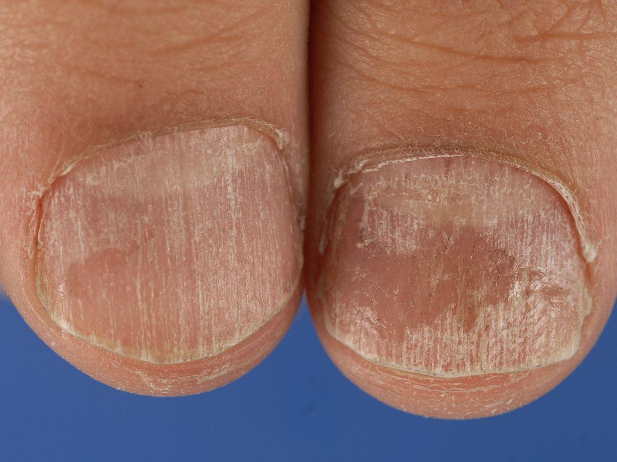 twenty nail dystrophy #10