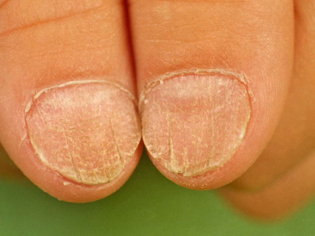 Twenty Nail Dystrophy