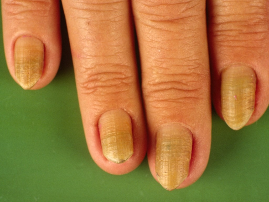Yellow nail syndrome | Genetic and Rare Diseases ...
