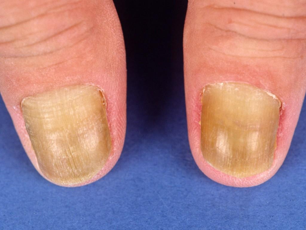 Gele nagel syndroom | huidinfo.nl | heldere informatie van ...