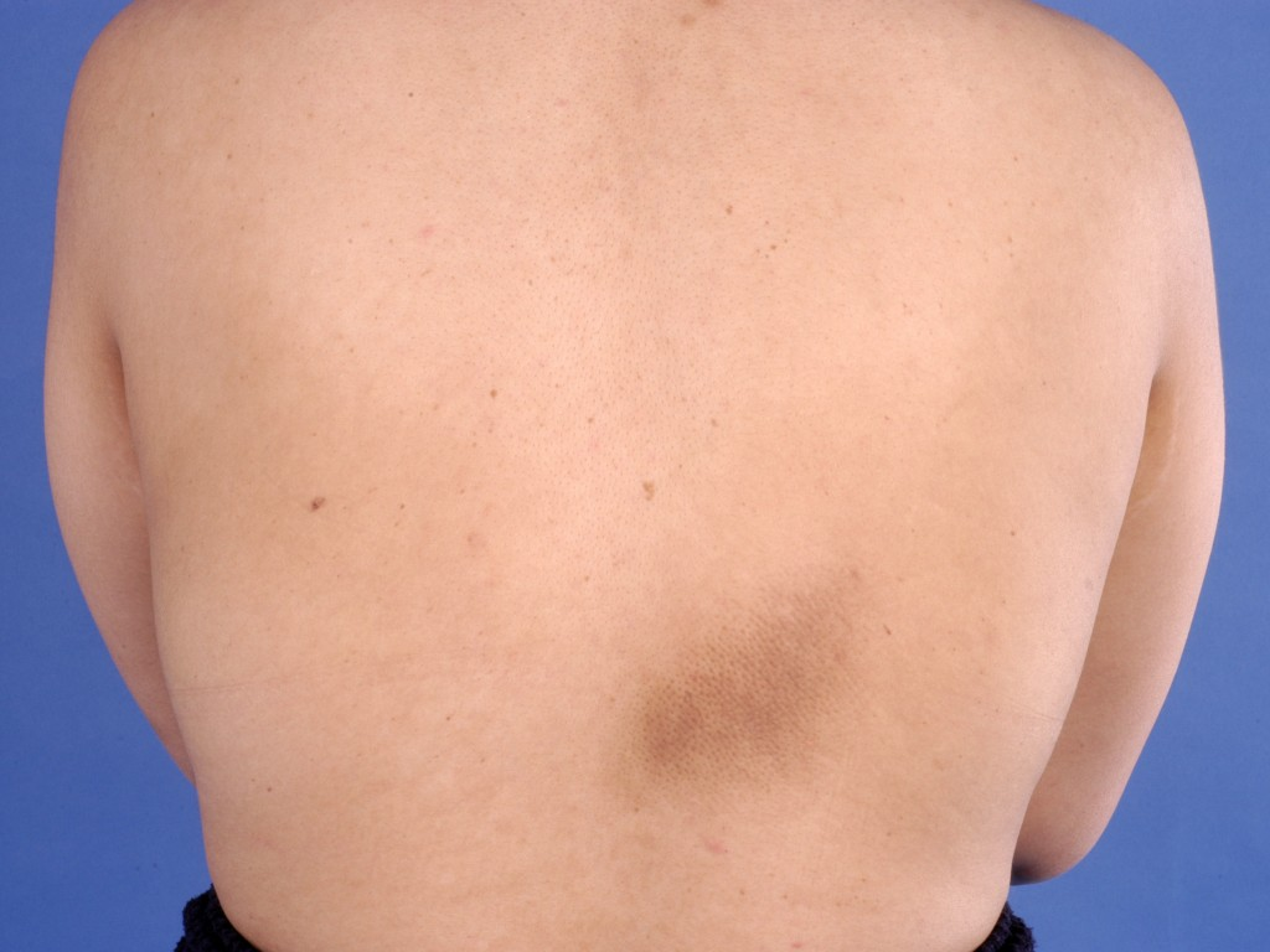 Lichen simplex chronicus en prurigo nodularis - Medicinfo