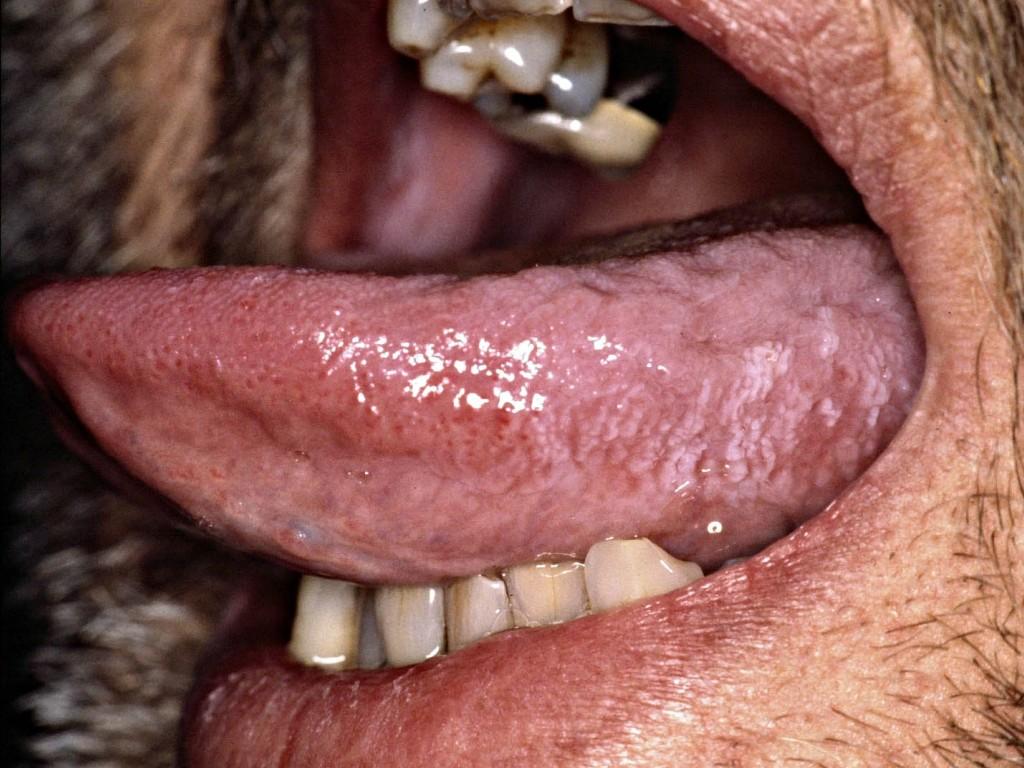 Amateur deep movie throat