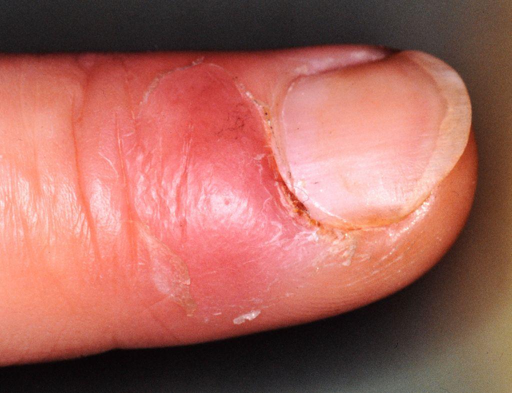 ontstoken nagelriem trekzalf