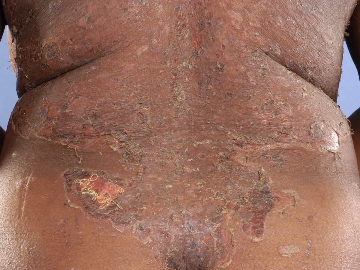 erosie huid