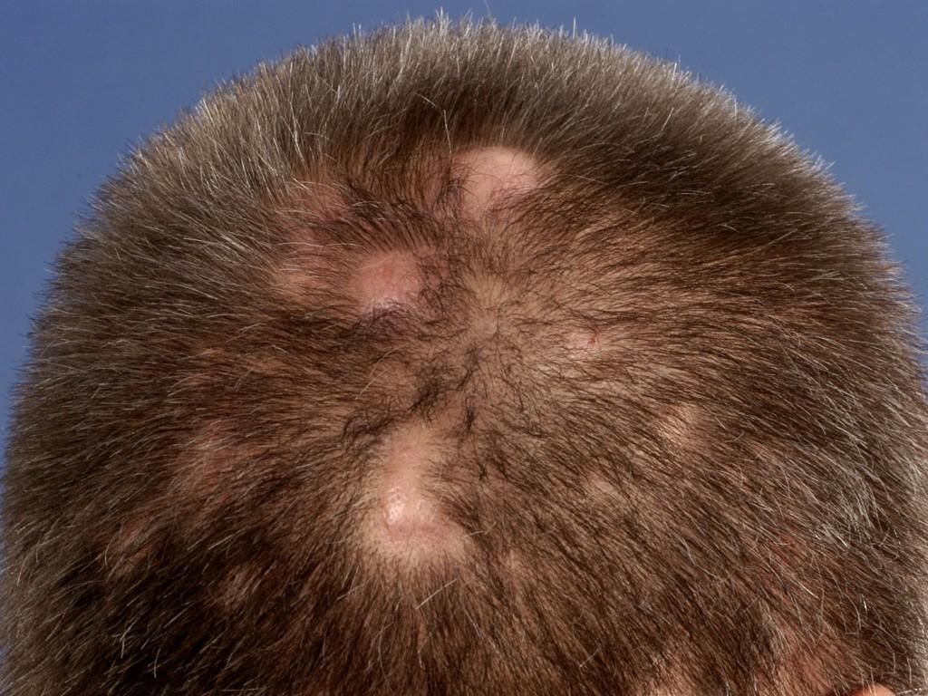 Acne keloidalis nuchae - Wikipedia