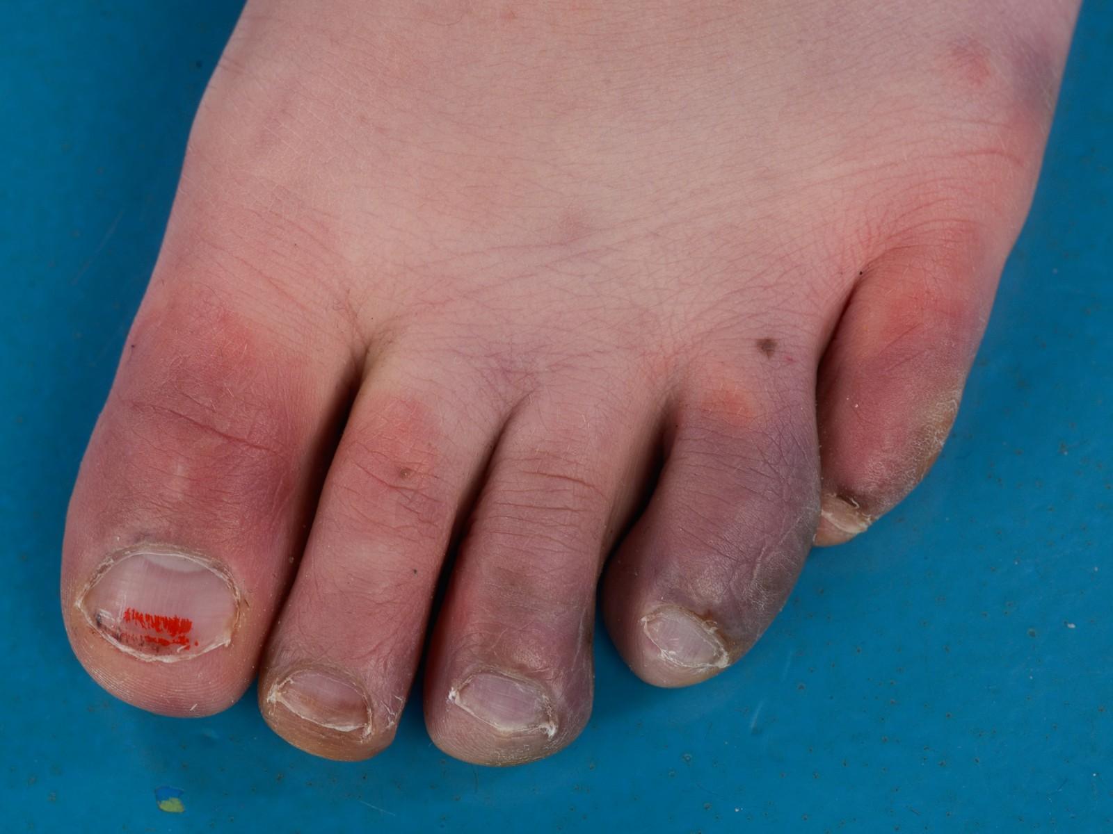 slechte doorbloeding vingers