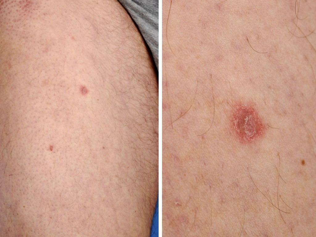 Pityriasis Lichenoides - American Osteopathic College of ...