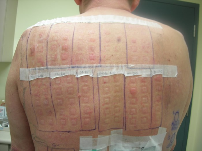 patch test for allergies