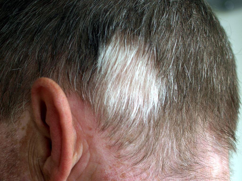 vitiligo huidziekten