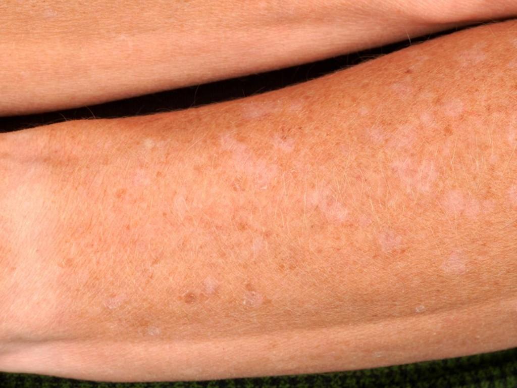 porokeratosis actinica disseminata superficialis  klik op foto voor    Porokeratosis