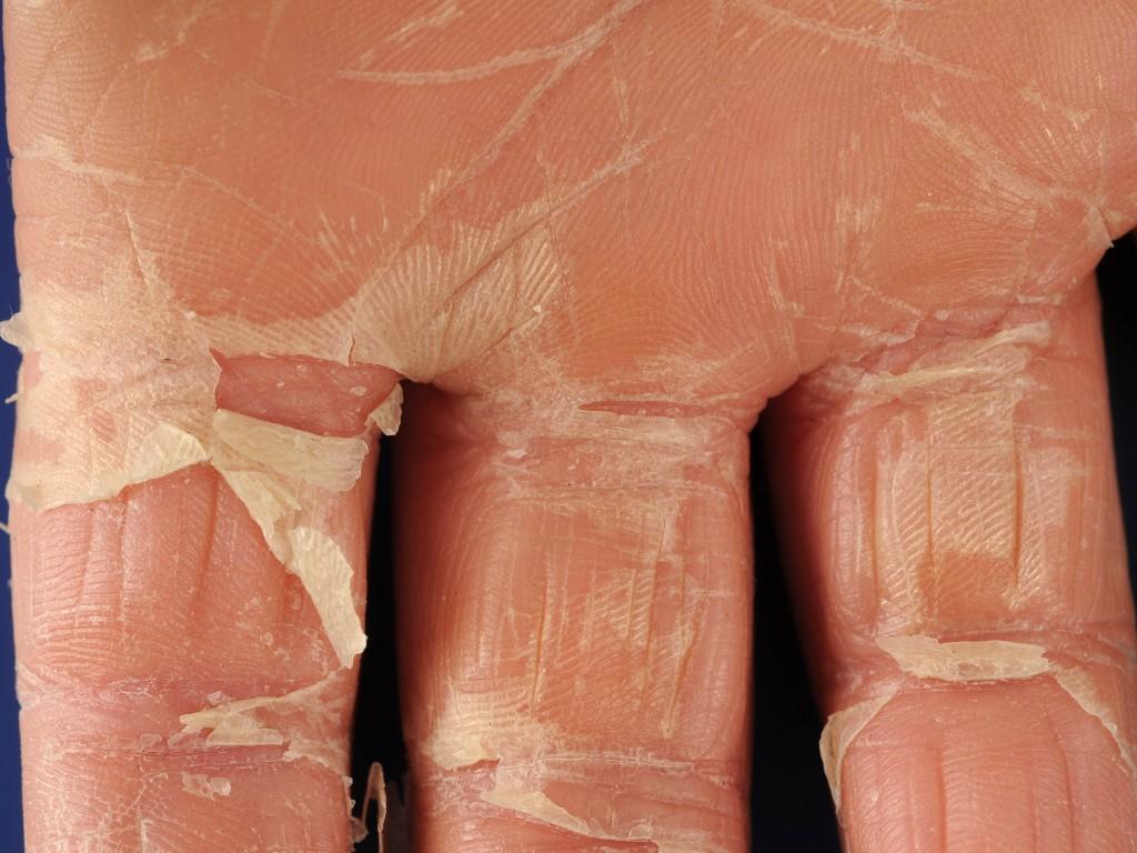 streptokokken symptomen huid