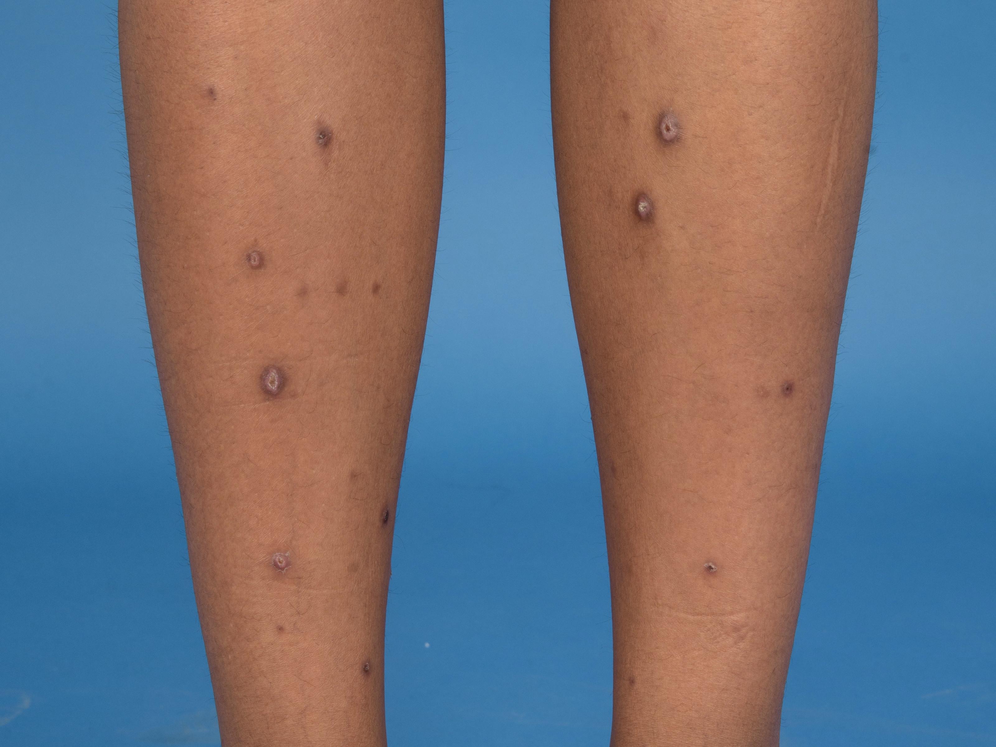 eczeem benen behandeling