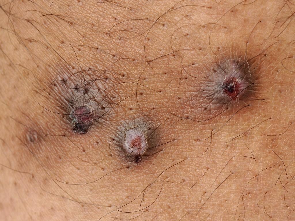 Nodular Prurigo - British Association of Dermatologists