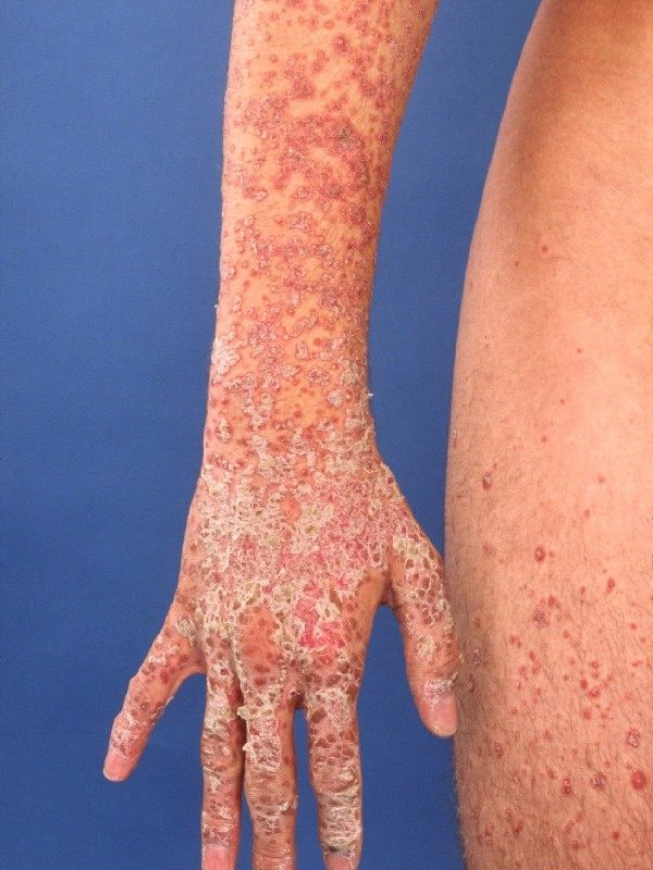 Acute forms of psoriasis | DermNet New Zealand