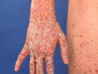 huidziekten psoriasis guttata
