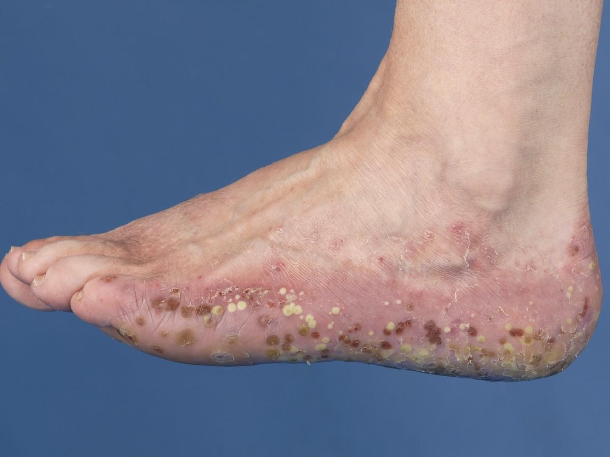 psoriasis pustulosa huidziekten