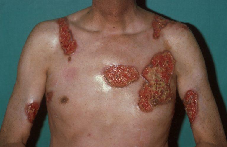 http://www.huidziekten.nl/afbeeldingen/pyoderma-gangrenosum-13.jpg