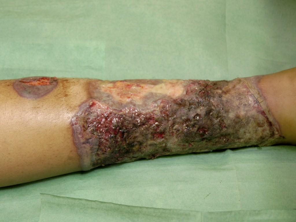 Pyoderma gangrenosum bij de ziekte van Crohn (klik op foto voor ...