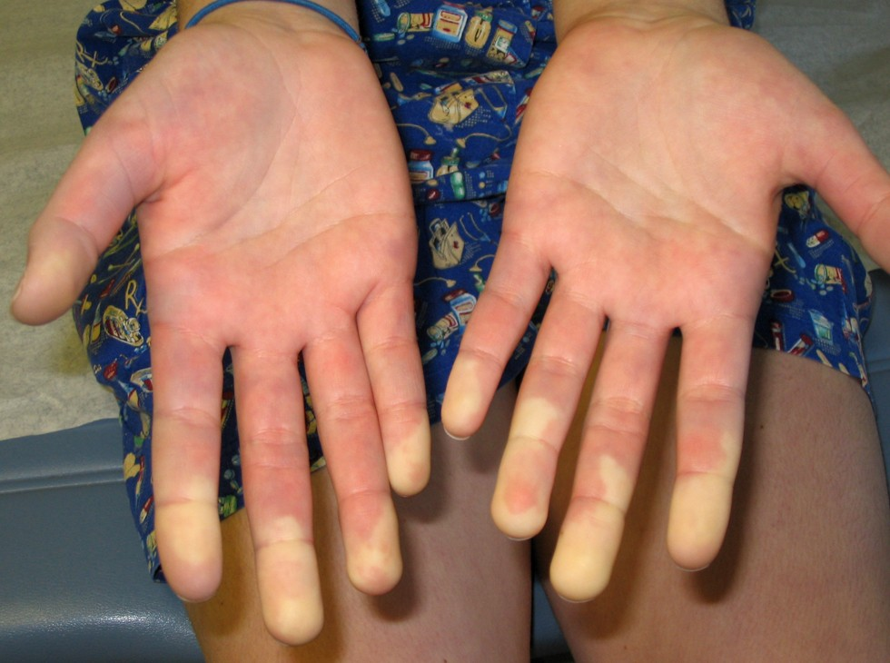 a study on the raynauds condition Raynaud's treatment study (rts) - this study has been completed (current: 23 nov 2006) - nifedipine safety and efficacy of pletal(cilostazol) for the treatment of juvenile primary and secondary raynauds phenomenon - this study has been completed (current: 23 nov 2006) - pletal.