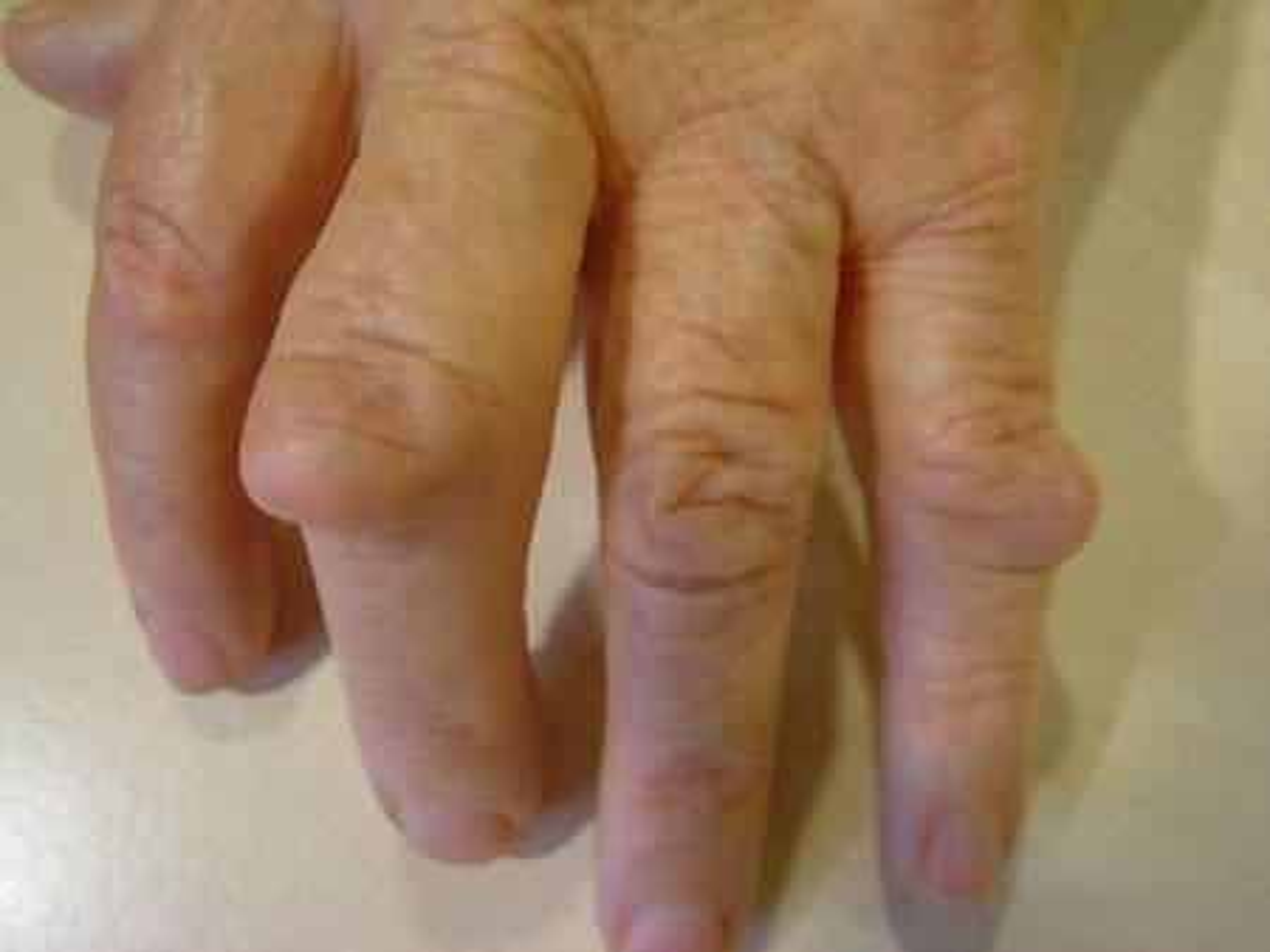 http://www.huidziekten.nl/afbeeldingen/reuma-noduli-3.jpg