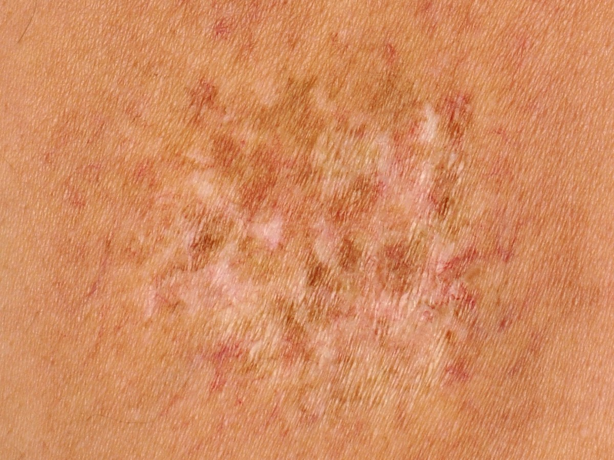 Radiation Dermatitis | WoundSource