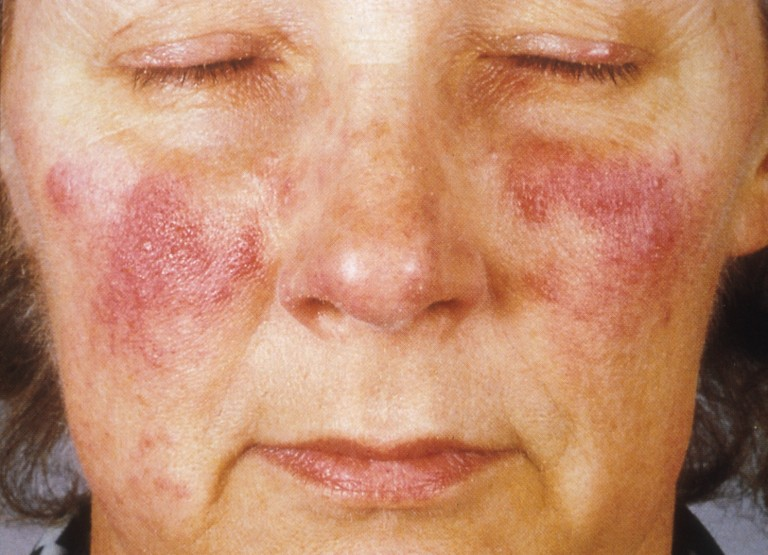 allergie tattoo symptomen