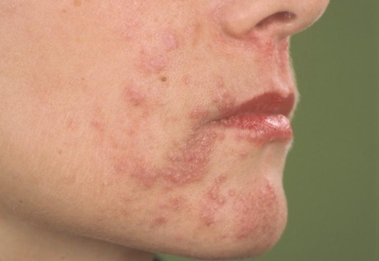 huidaandoening rosacea besmettelijk