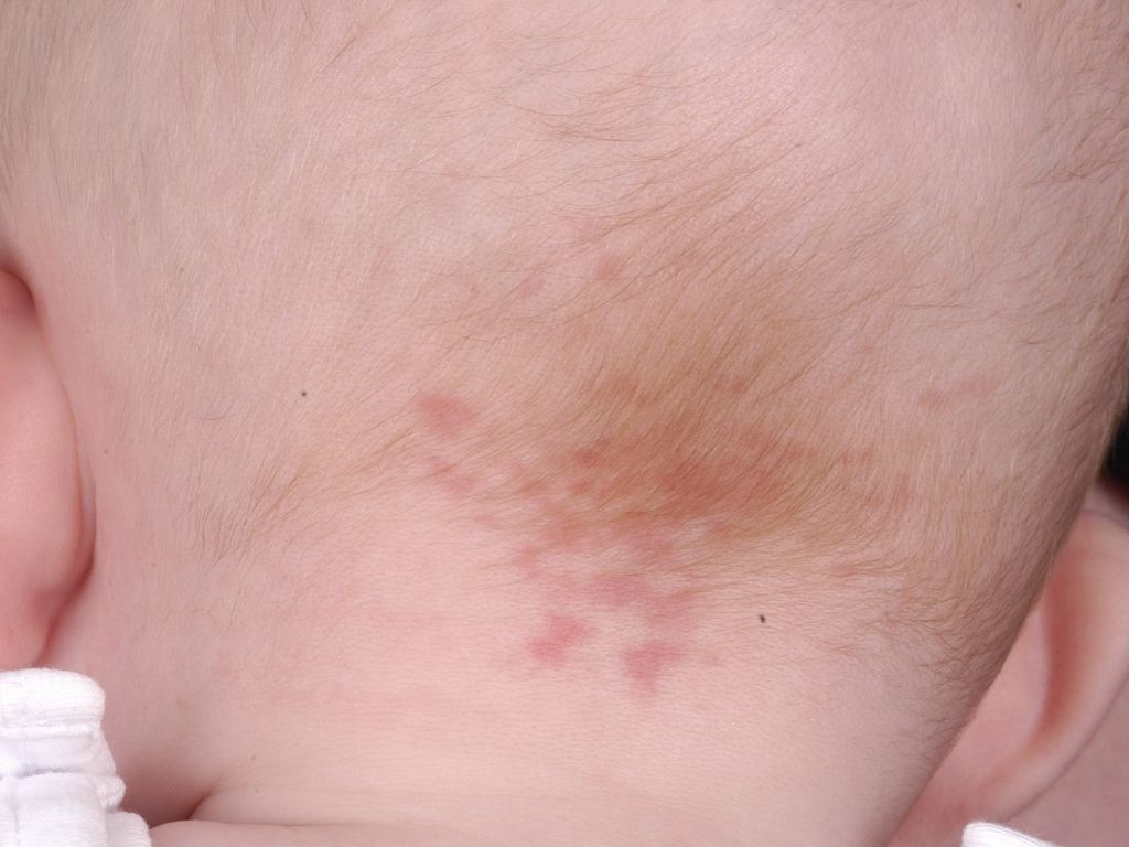 Vascular birthmarks – salmon patches, port wine stains and ...