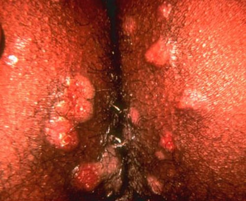 herpes sore pictures