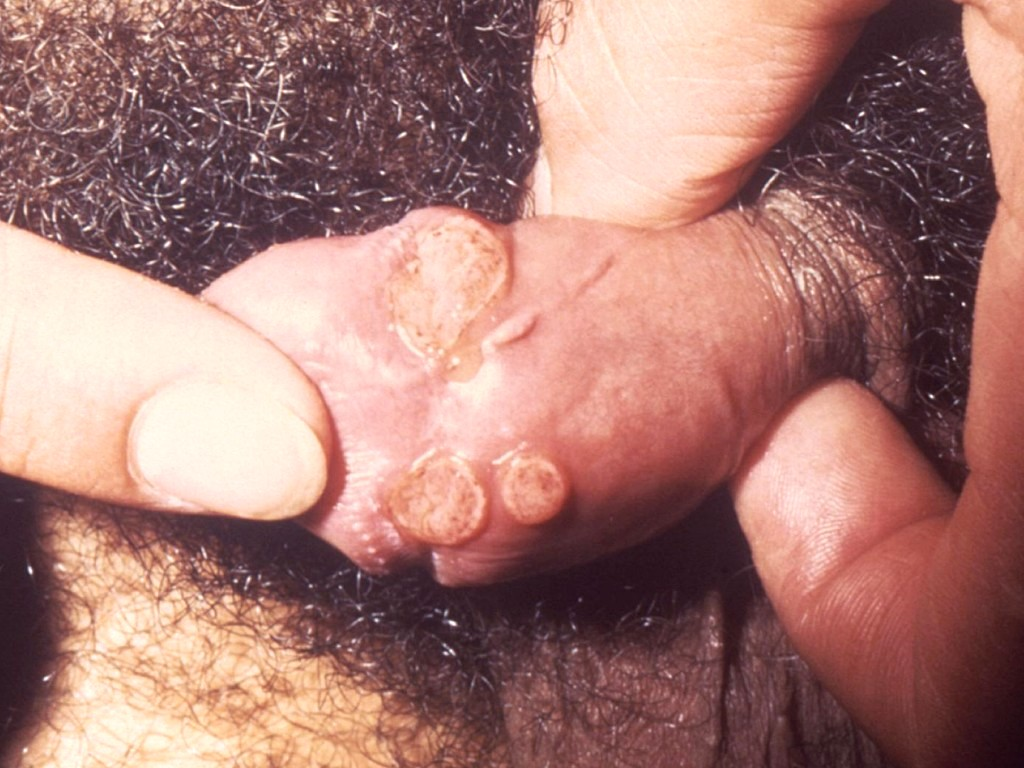 Pictures of herpes on glans only? - Honeycomb