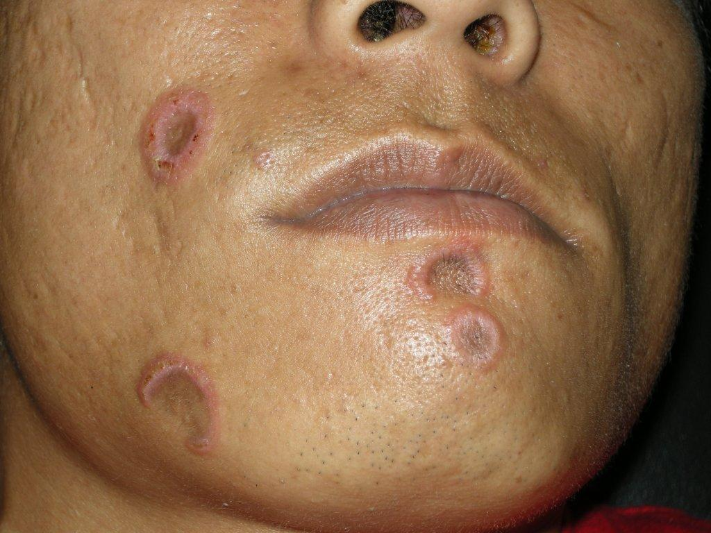 cheek rash