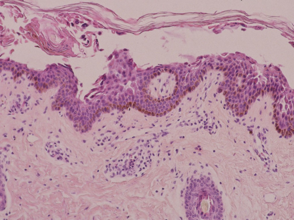 Staphylococcal scalded-skin syndroom | Huidhuis