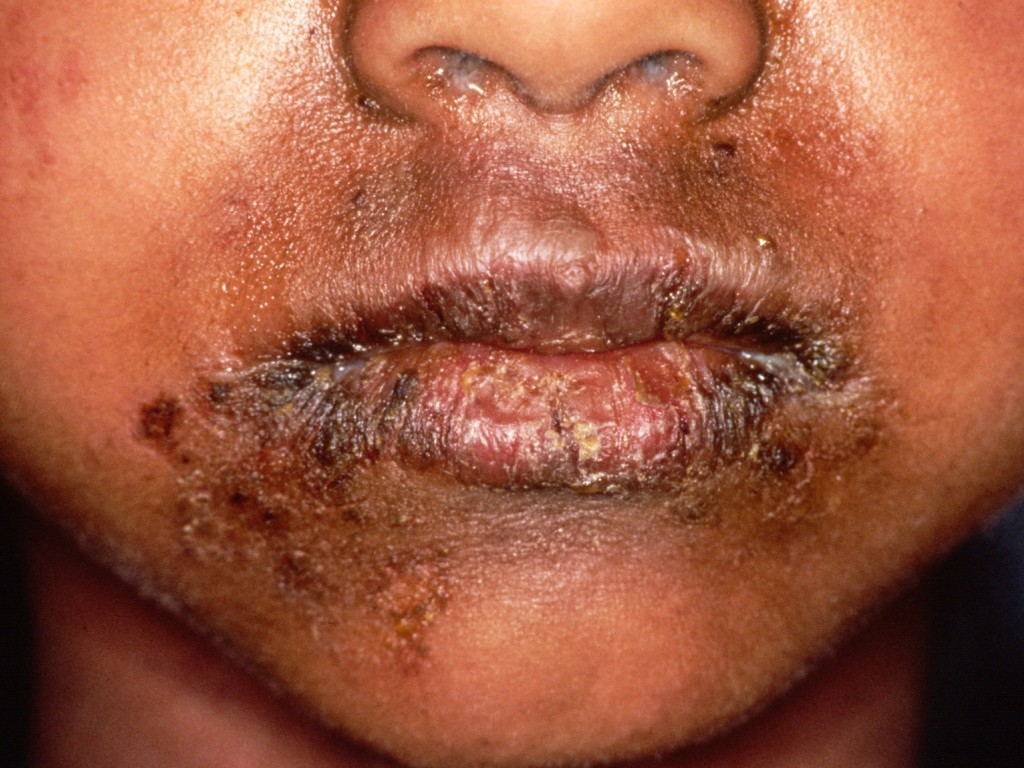 scalded skin syndrome pictures #10