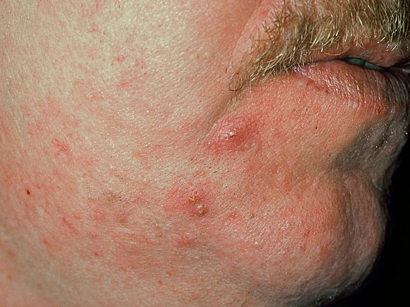 steroid induced rosacea treatment