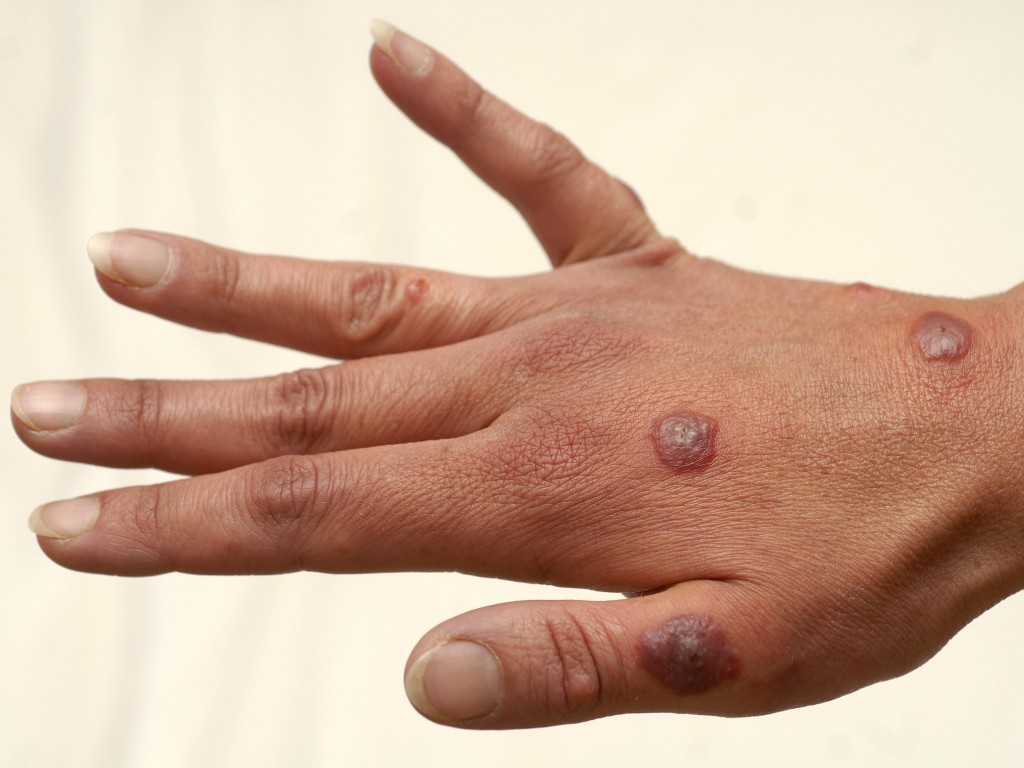 Erythema multiforme: MedlinePlus Medical Encyclopedia