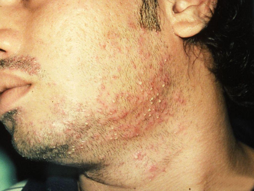 Sycosis vulgaris - Wikipedia
