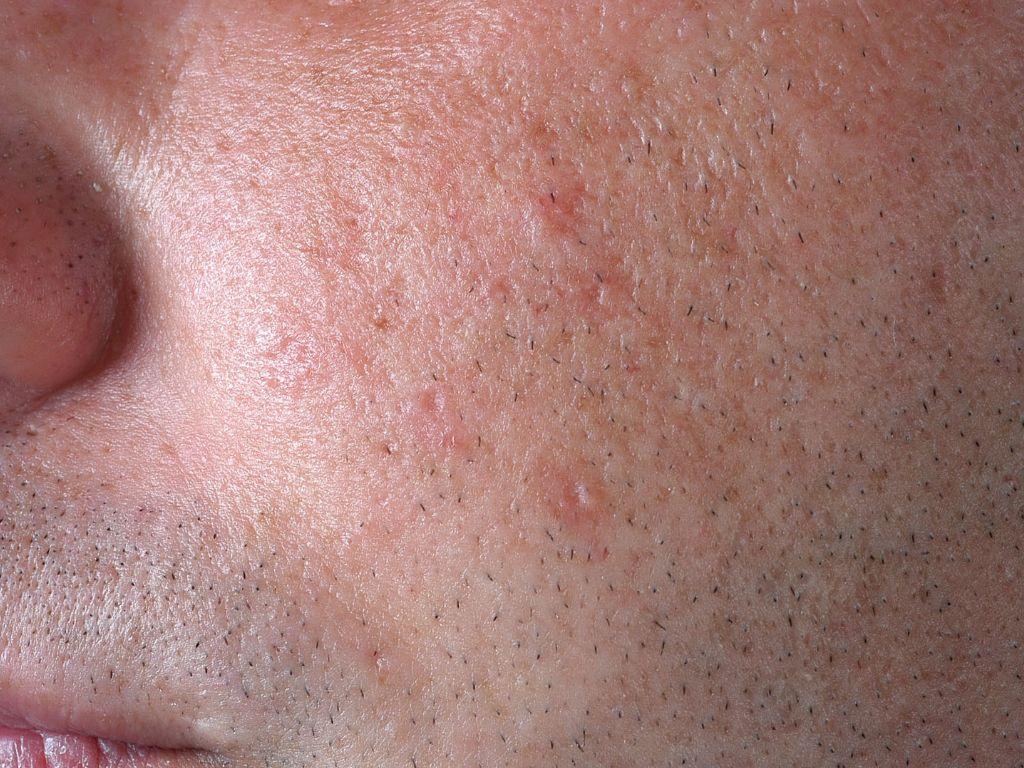 Syringoma (syringoma periorbitalis)