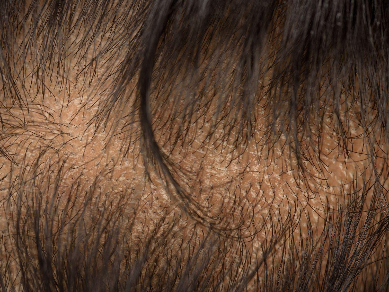 diffuus haarverlies