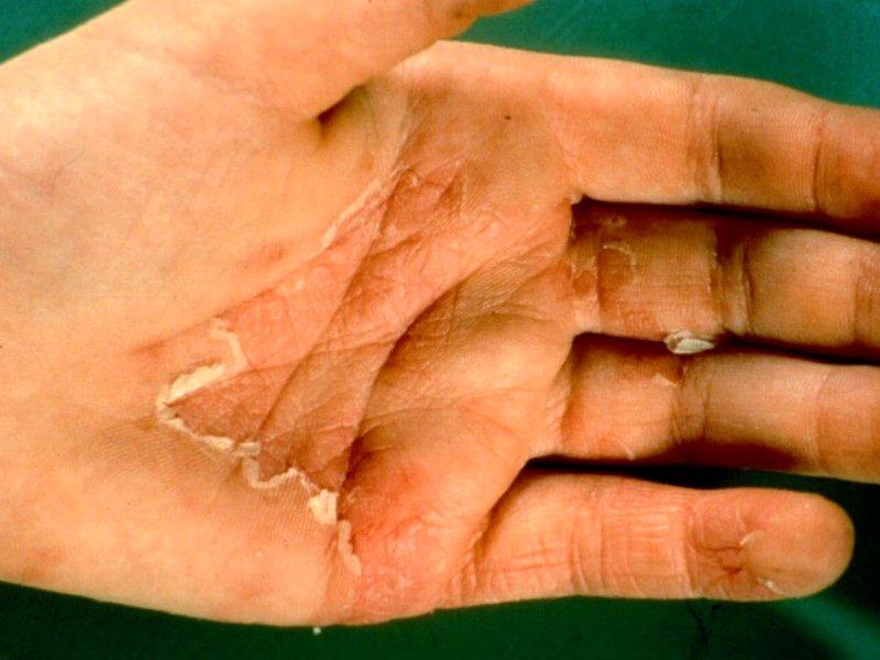 kloven in handen behandeling