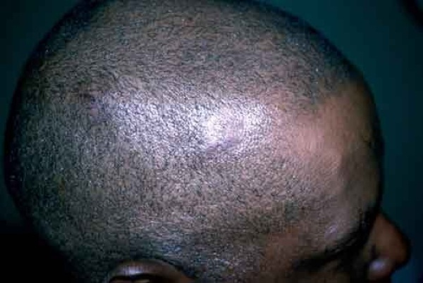 ... kerion kerion ringworm on the scalp pictures of ringworm on scalp