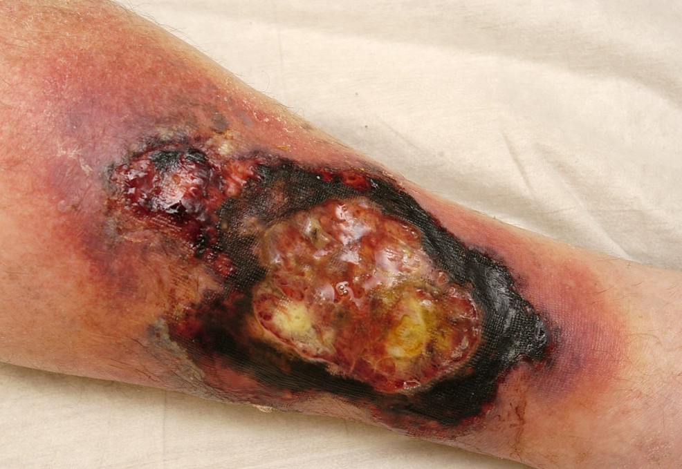 Cellulitis Treatment & Management: Approach Considerations ...