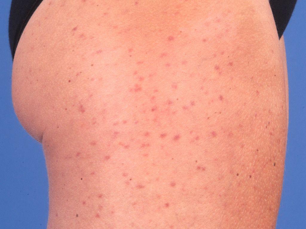 Dermnet: Dermatology Pictures - Skin Disease Pictures