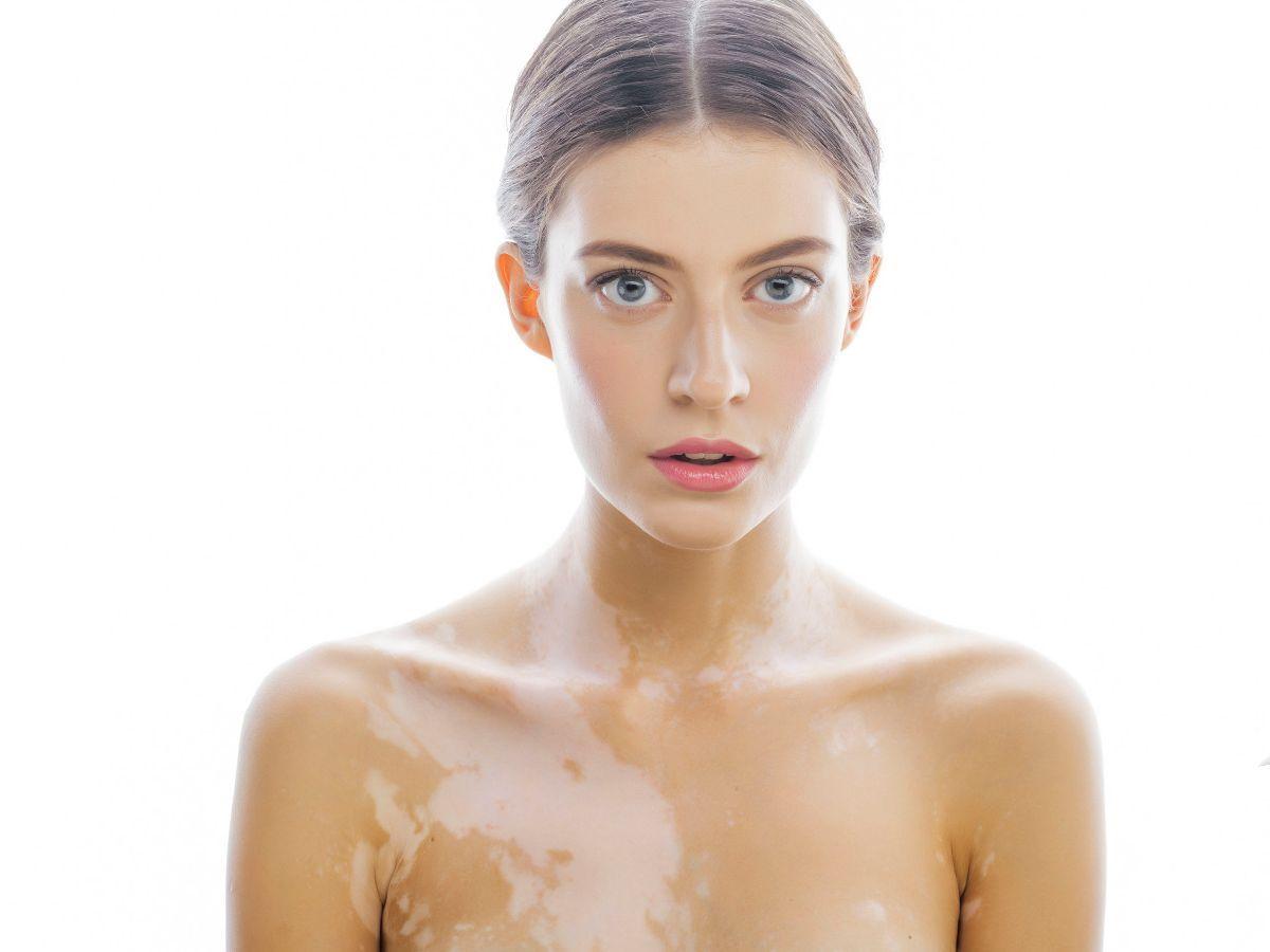 Vitiligo | gezondheid.be