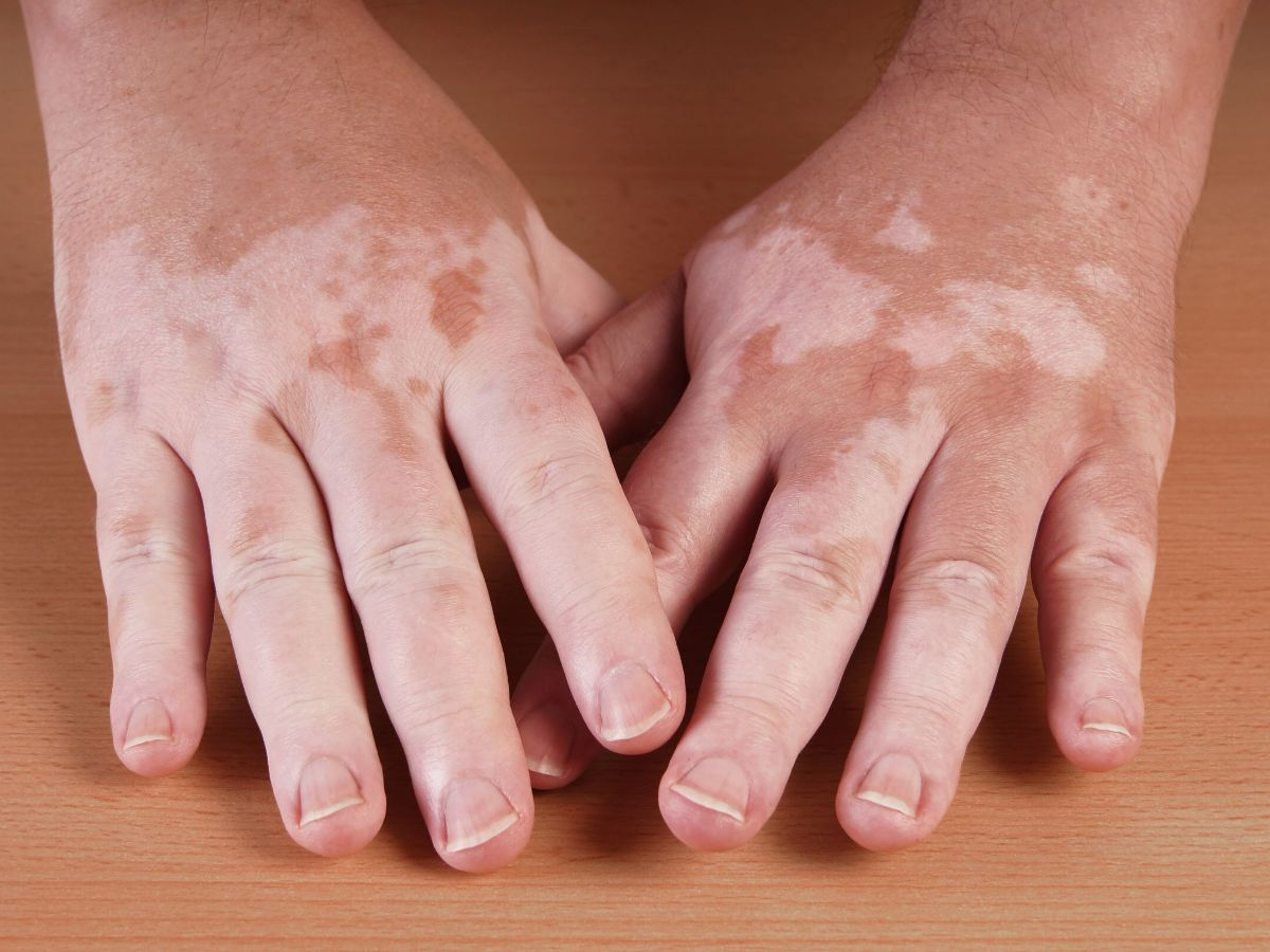 vitiligo - pictures, photos