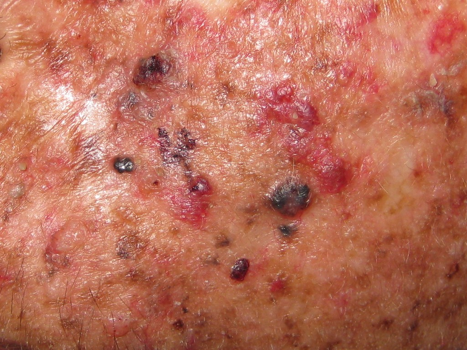 Xeroderma pigmentosum: MedlinePlus Medical Encyclopedia